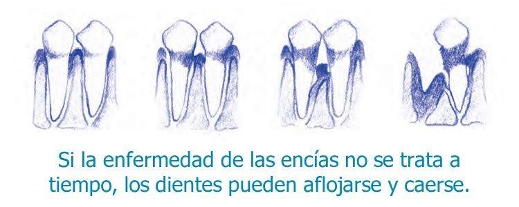 periodontitis o enfermedad de las encías