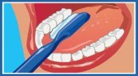 Limpieza de premolares y molares