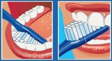 cara Interna de los dientes