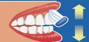 cara externa de los dientes