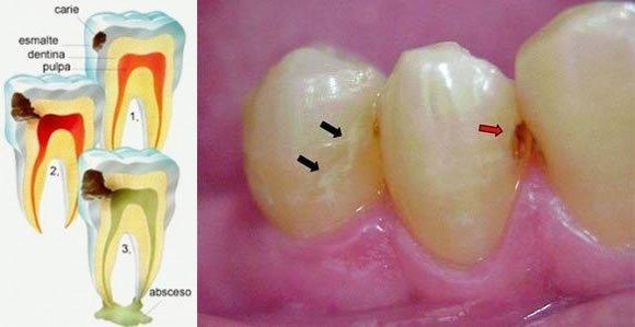 causas de las caries esmalte dentina pulpa absceso