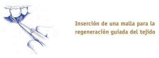 inserción de una malla para regeneración guiada del tejido