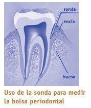peridonntitis, uso de la sonda para medir la bolsa periodontal
