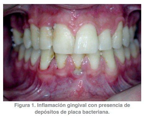 Figura 1. Inflamación gingival con presencia de