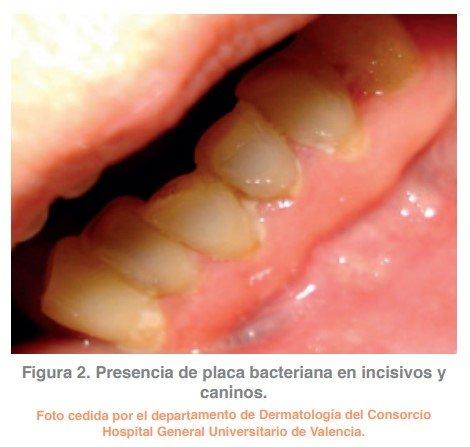 Figura 2. Presencia de placa bacteriana en incisivos y