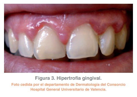 Figura 3. Hipertrofia gingival.