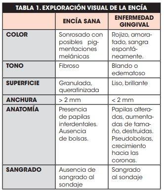 exposicion visual de la encia tabla 1