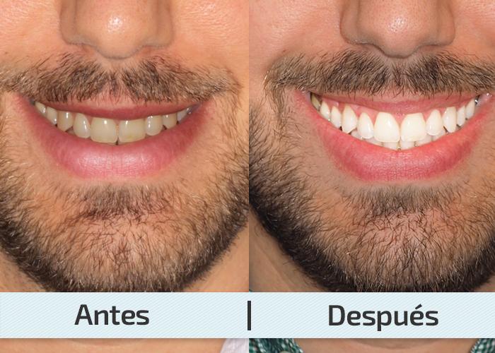 antes y despues blanqueamiento dental