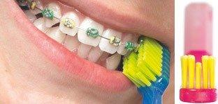 cepillo dental para ortodoncia