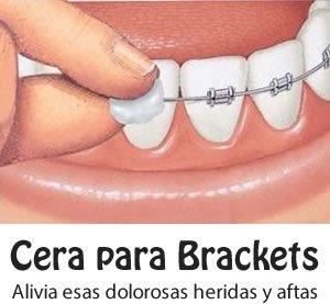 cera para brackets y ortodoncia precio, donde la venden, mifarma, como hacer, mercadolibre, inkafarma cuanto dura